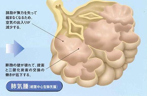 慢性閉塞性肺疾患(COPD)について